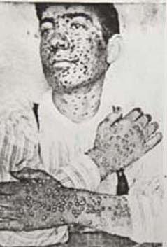 1880s Smallpox Victim